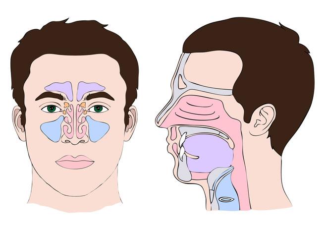 II❶II Chronische Sinusitis Hintergründe: Entstehung, Symptome, Diagnose